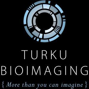 Turku BioImaging presents local and national developments in imaging hemisphere at Turku Bioscience breakfast meeting.